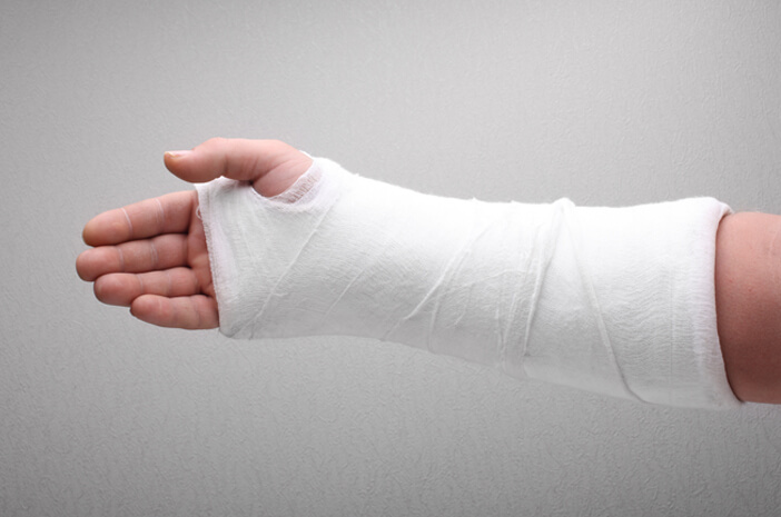 Begini Cara Pengobatan Patah Pergelangan Tangan