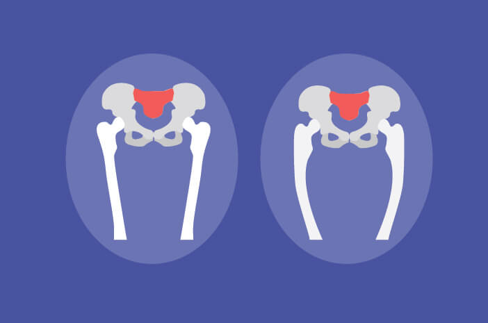 Begini Gejala dari Osteomalasia yang Wajib Diwaspadai