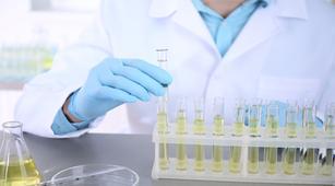 Begini Prosedur Tes Urine untuk Mendiagnosis Diabetes