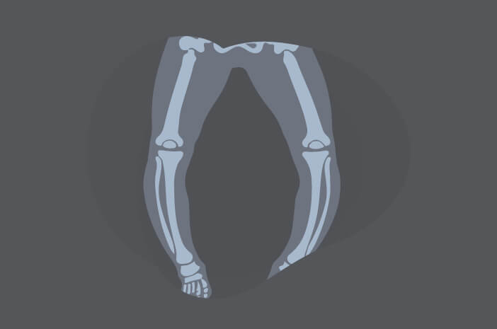 Begini Prosedur USG untuk Deteksi Osteogenesis Imperfecta