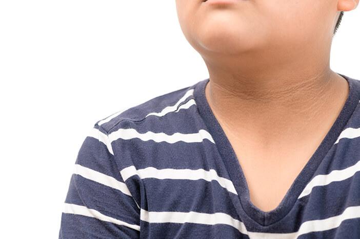 Benarkah Akantosis Nigrikans Petanda Alami Prediabetes?