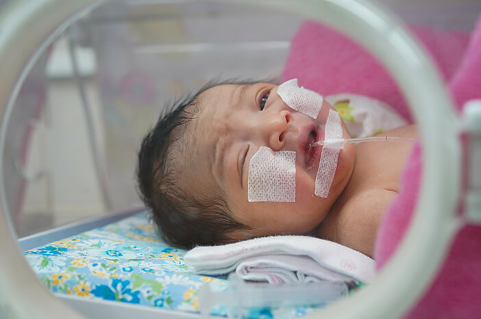 Benarkah Kelahiran Prematur Sebabkan Dyspraxia pada Anak?