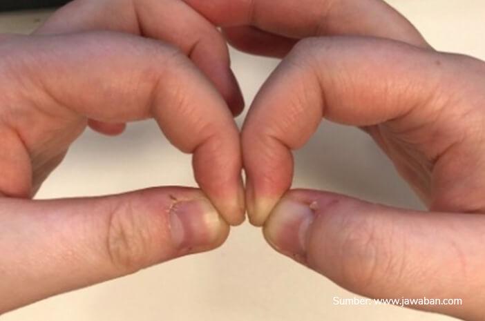 Benarkah Menggabungkan 2 Jari bisa Deteksi Kanker Paru?