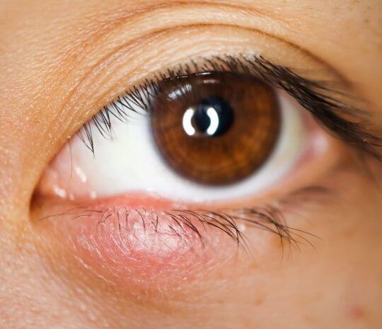 Benarkah Bintitan Bisa Menular Melalui Kontak Mata?