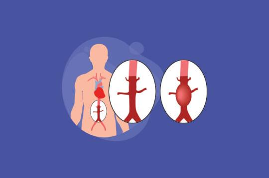 Berakibat Fatal Bagi Tubuh, Begini Cara Menangani Aneurisma Aorta