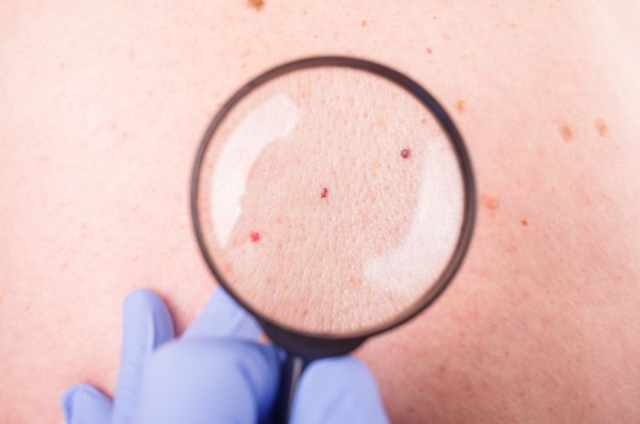Bersifat Jinak Bisakah Kista Epidermoid Disembuhkan