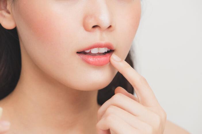 Bibir Pecah Saat Puasa, Atasi dengan 4 Cara Ini