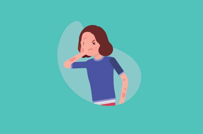 Bikin Kulit Ruam, Ini Cara Diagnosis Pityriasis Rosea