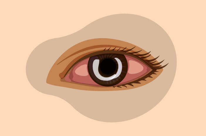 Ulkus Kornea, bintik putih pada mata