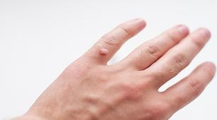 Bisakah Kutil Sembuh dengan Obat Khusus?