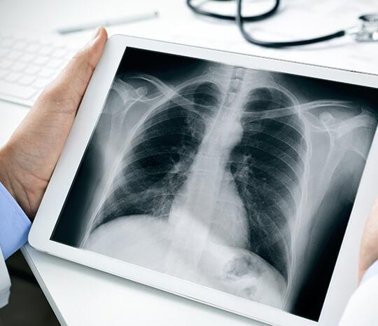 Bisakah X-Ray Sebabkan Efek Samping?