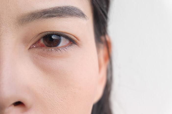 Blefaritis Menahun Dapat Sebabkan Mata Kering