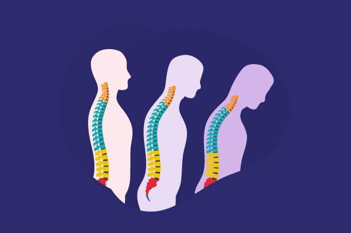Osteomalasia, Osteoporosis, tulang keropos