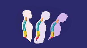 Buat Tulang Rapuh, Ini Bedanya Osteomalasia dan Osteoporosis