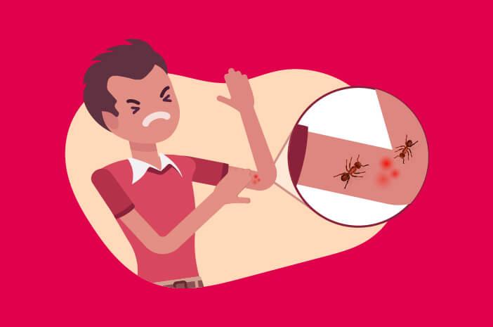 cara-ampuh-untuk-mengatasi-gigitan-semut-api-halodoc