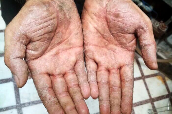 cegah toxic shock syndrome dengan 7 kebiasaan ini