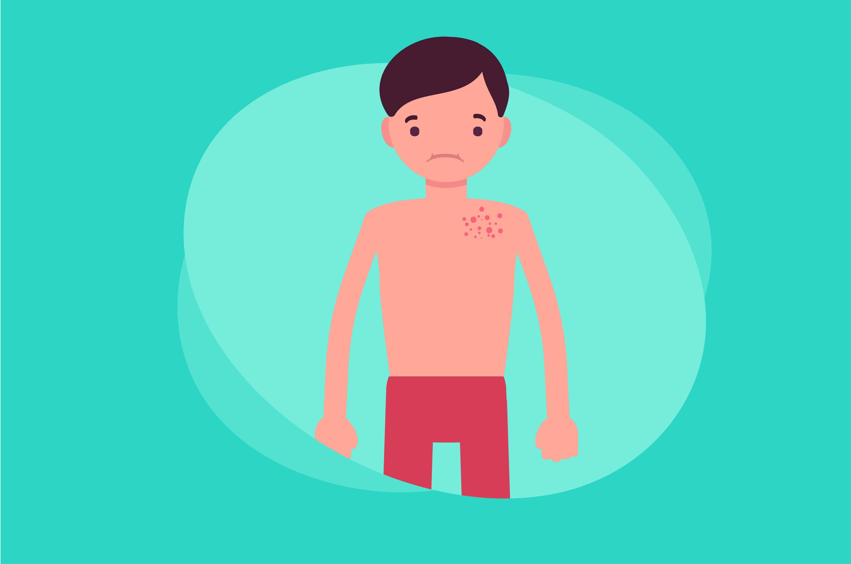 Cegah Pityriasis Alba dengan 6 Cara Ini