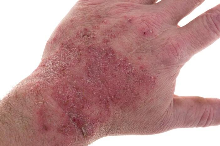 Fakta Penyakit Porfiria Kulit yang Perlu Diketahui