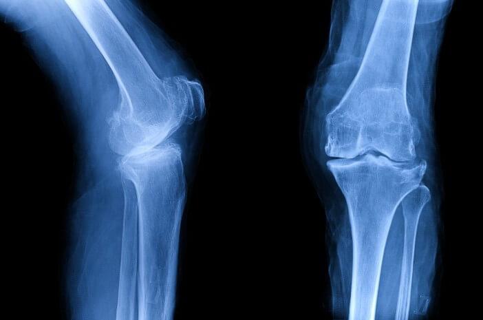 Faktor Risiko Seseorang Alami Osteogenesis Imperfecta