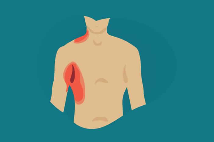 Fatal, Ini 6 Komplikasi Akibat Nekrolisis Epidermal Toksik