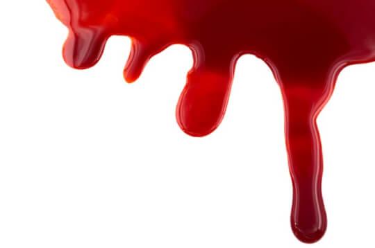 Gangguan Pembekuan Darah adalah Penyakit Menurun, Mitos atau Fakta?