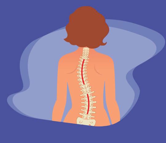 pengidap skoliosis, kelainan tulang belakang