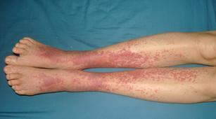 Hati-Hati, Infeksi Hepatitis B dan C Bisa Sebabkan Vaskulitis