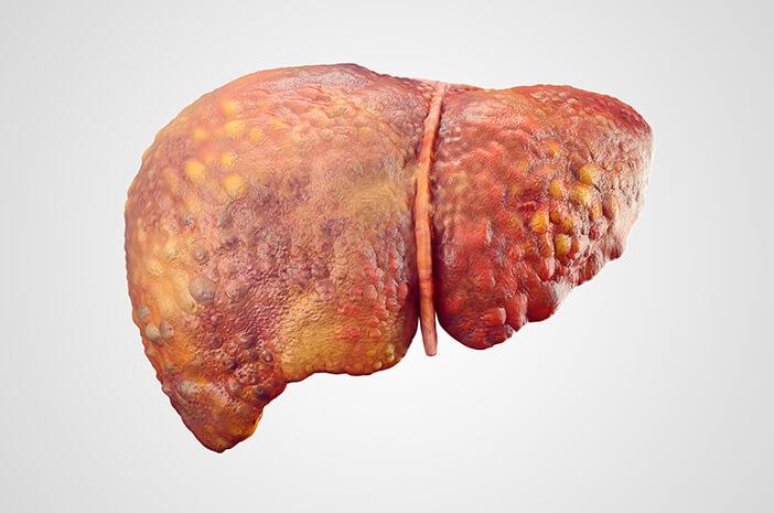 Hati-Hati, Infeksi Hepatitis B Dapat Sebabkan Gagal Hati