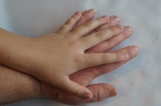 Hati-Hati, Akromegali Bisa Sebabkan 8 Komplikasi Ini