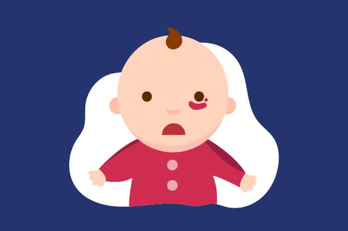 Ketahui Hemangioma, Jaringan Lunak Kemerahan pada Bayi