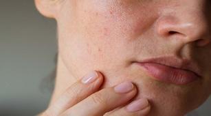Hipoparatiroid Bisa Sebabkan Kulit Kering Bersisik?