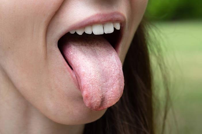 Hubungan Intim tidak Sehat Bisa Picu Kanker Lidah?