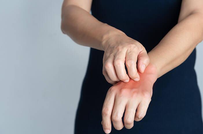 Hubungan Sindrom Sjogren dengan Dermatitis Herpetiformis