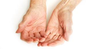 Idap Skleroderma, Ini yang Bisa Pengidap Lakukan