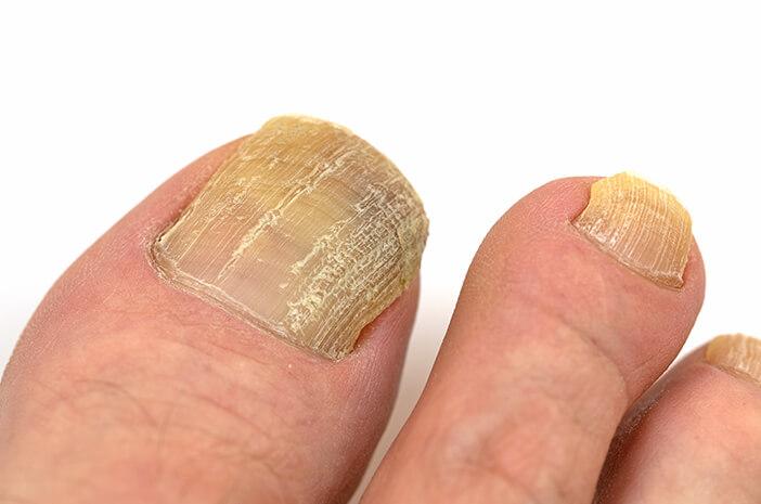 Idap Psoriasis Tingkatkan Risiko Terkena Jamur Kuku