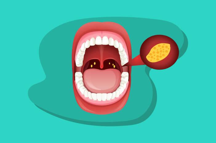 Infeksi Amandel Dapat Sebabkan Abses Peritonsil