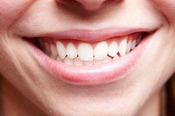 Ini Alasan Karang Gigi Harus Dihilangkan