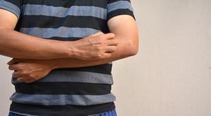 Ini Pengobatan Efektif untuk Dermatitis Herpetiformis