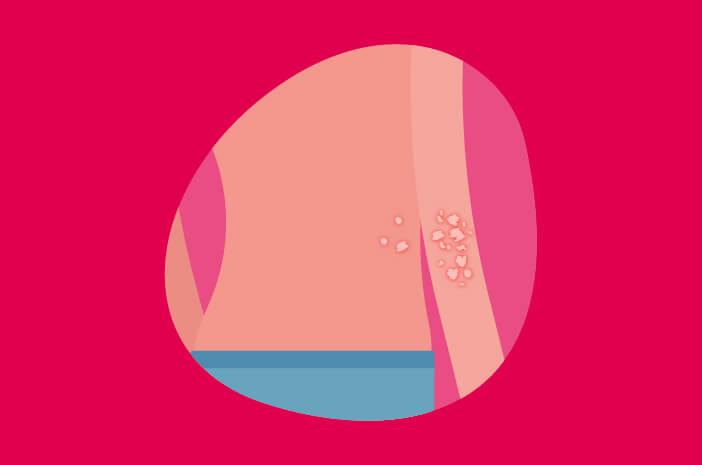neurodermatitis, penyakit kulit yang tidak menular