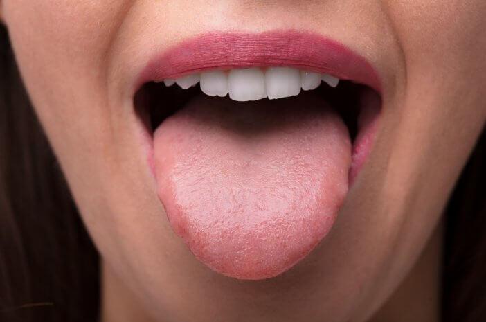 Ini Bedanya Kanker Mulut dan Kanker Lidah