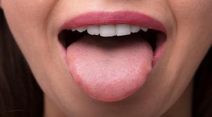 papilloma lidah adalah