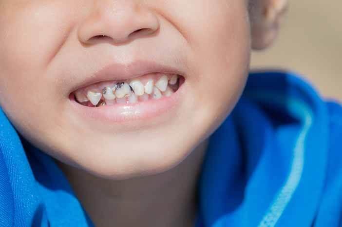Ini Dampak Baby Bottle Tooth Decay yang Tidak Diobati