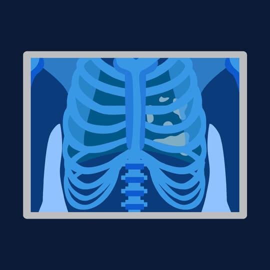 Pneumotoraks Traumatik, pneumotoraks nontraumatik, membran serosa
