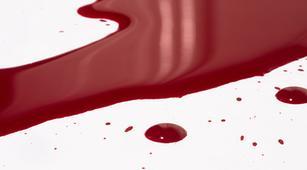Inilah Kelainan Darah Terkait Sel Darah Putih