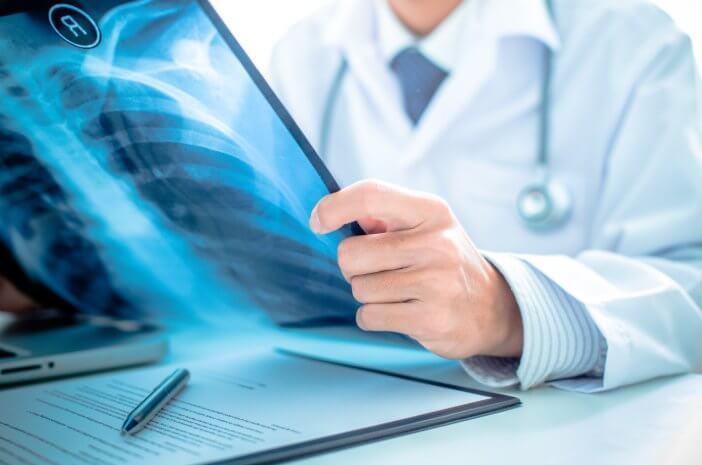 Ini Prosedur Diagnosis yang Dilakukan Dokter Spesialis Paru