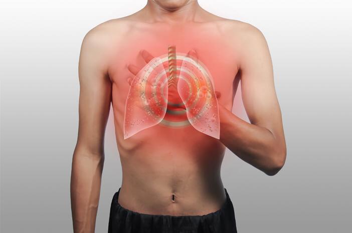 Ini Tes untuk Diagnosis Acute Respiratory Distress Syndrome