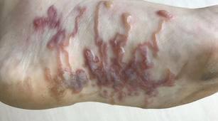 Ini Tips untuk Mencegah Cutaneous Larva Migrans