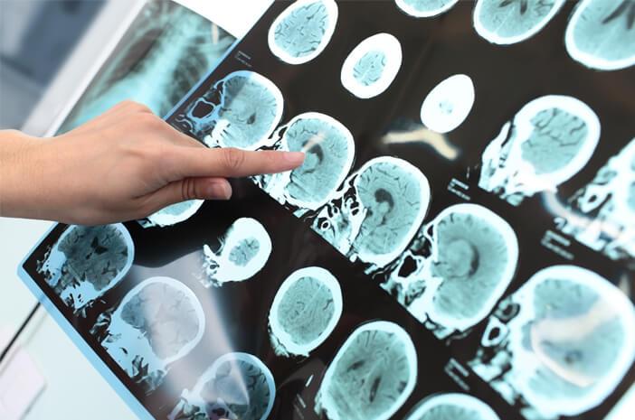 Awasi 6 Kondisi Ini saat Melakukan Pemeriksaan Radiologi