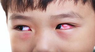 Jenis Infeksi yang Sebabkan Endoftalmitis