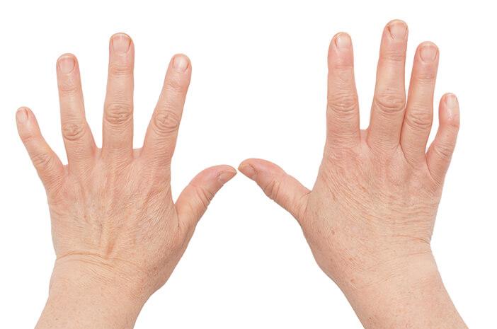 Juvenile Rheumatoid Arthritis Dapat Ganggu Pertumbuhan dan Perkembangan Anak
